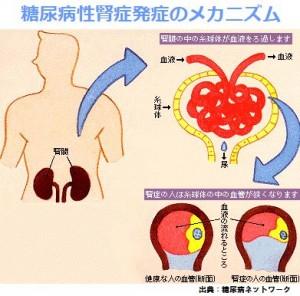 糖尿病性腎症の発生メカニズム