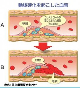動脈硬化症の成因