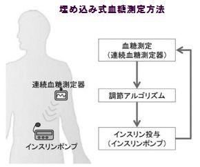 埋め込み式血糖測定法