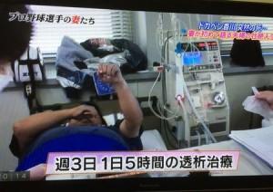 香川伸行は糖尿病腎症で人工透析