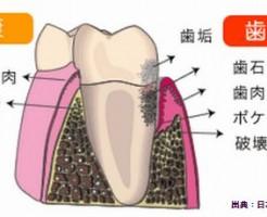 歯周病は糖尿病と密接な関係にある