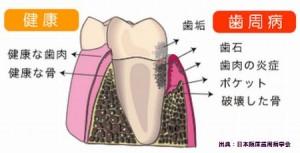 歯周病は糖尿病を悪化させるので早めの予防と日本経済新聞が報じた