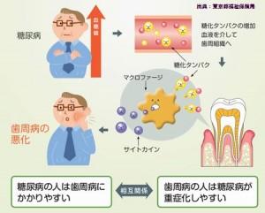 歯周病は糖尿病の合併症で、歯磨き回数が多いと予防できます