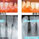 歯周病を治すと血糖値が下がる