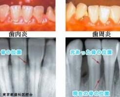 血糖値を下げるならまずは歯周病を治して下さい