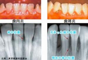 糖尿病合併症の歯肉炎と歯周炎