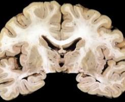 糖尿病と認知症や痴呆の関係