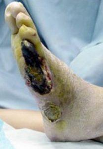 足壊疽を放置すると糖尿病の合併症で足切断しなければならなくなる