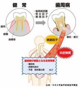 歯周病を治して血糖値が下がることの科学的根拠