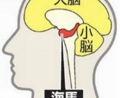 糖尿病では脳が萎縮して認知症の原因