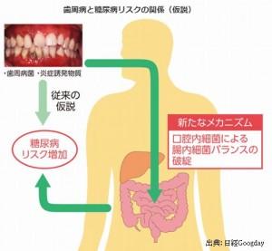 歯周病が糖尿病を悪化させる理由は炎症によりインスリン抵抗性が増加するからです