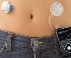 糖尿病のインスリン自動投与