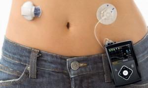 1型糖尿病治療のインスリン自動投与デバイス