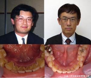 日本経済新聞は歯磨きが糖尿病を予防すると特集