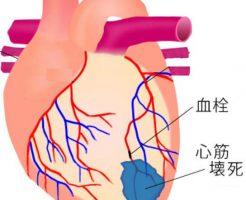 糖尿病の運動療法は週5回のウオーキングで心血管疾患を予防できる