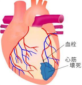 心筋梗塞や脳卒中は糖尿病の合併症