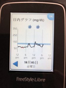 フリースタイルリブレですき家ドリ牛セットで血糖値が上がるかを調べました
