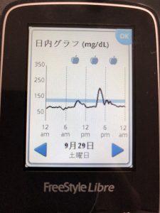牛丼で血糖値が上がるのかフリースタイルリブレで測定