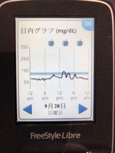 天ぷら蕎麦の食後高血糖はフリースタイルリブレで分かる